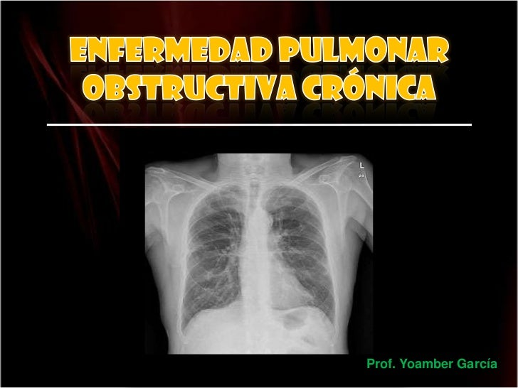 Enfermedad pulmonar obstructiva crónica<br />Prof. Yoamber García<br />