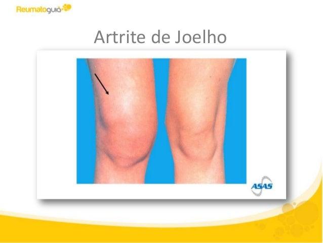 como tratar artrite no joelho