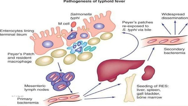pathology of typhoid fever essay Typhoid fever and cholera pathology and pathogenesis after passage through the acid barrier of the (detailed and well-referenced essays on typhoid and cholera.