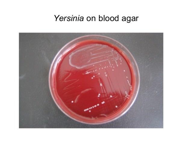 Citrobacter Species In Stool Microbiology Enterics