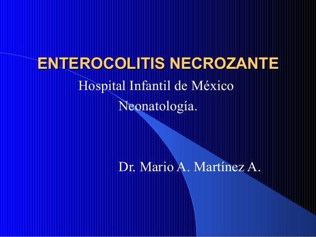 Enterocolitis necrosante 2
