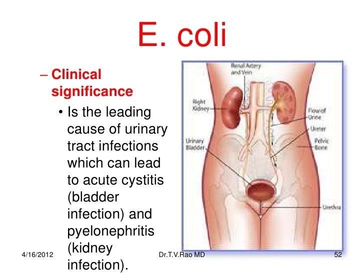 E Coli Infection From Food or Water Blood and Kidney