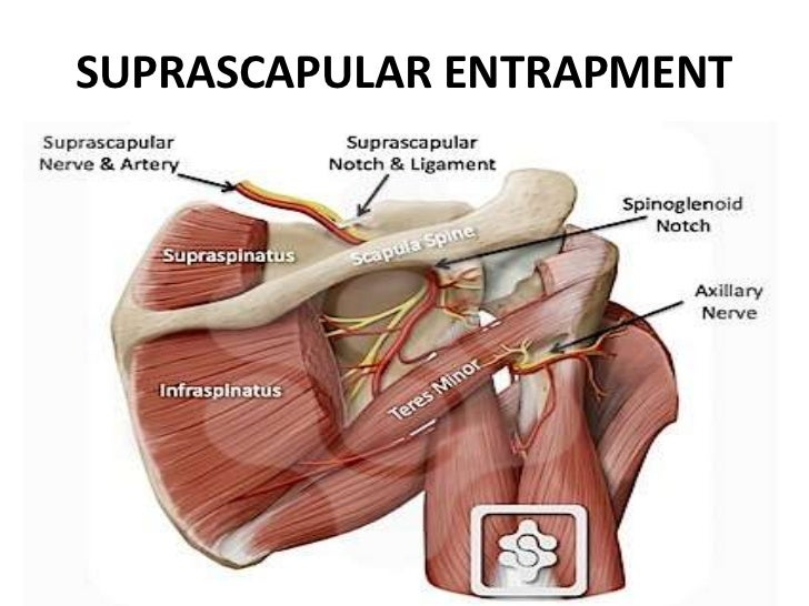 Mediastinum 9471425 also Ectopia Cordis Interna Tin Man Syndrome together with Dissecting Rabbits further Mediastinal Tumors 37542766 moreover 1826582. on the thoracic cavity contains