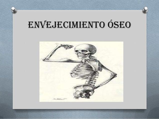 Envejecimiento óseo