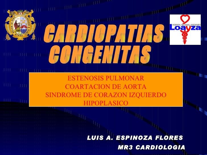 LUIS A. ESPINOZA FLORES  MR3 CARDIOLOGIA CARDIOPATIAS  CONGENITAS ESTENOSIS PULMONAR COARTACION DE AORTA SINDROME DE CORAZ...