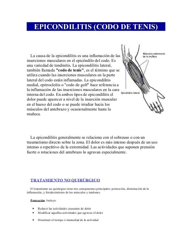 EPICONDILITIS (CODO DE TENIS) La causa de la epicondilitis es una inflamación de las inserciones musculares en el epicóndi...