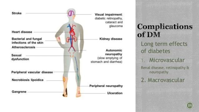 Epidemiology diabetes
