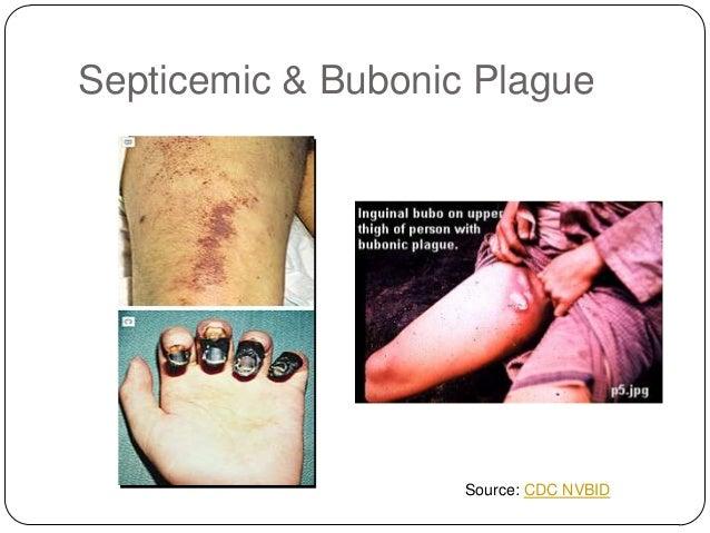 Bubonic Plague Symptoms and Treatment