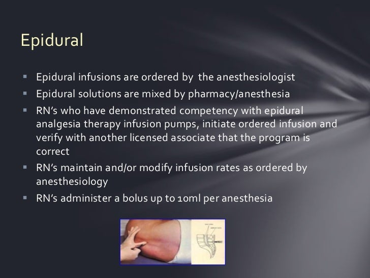 Epidural Epidural infusions are ordered by the anesthesiologist Epidural solutions are mixed by pharmacy/anesthesia RN'...