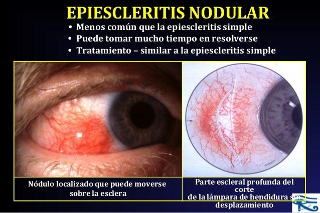 esteroides topicos oculares