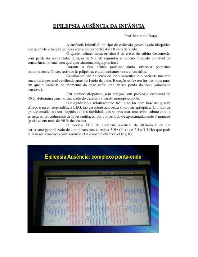 EPILEPSIA AUSÊNCIA DA INFÂNCIA                                                               Prof. Mauricio Borja         ...