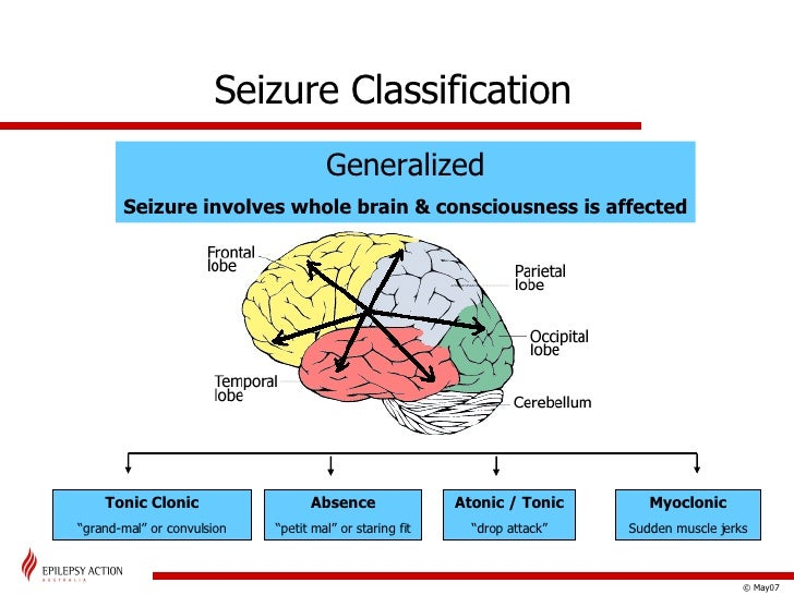 Epilepsy and Seizures Treatment amp Management Approach