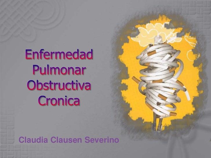 Claudia Clausen Severino