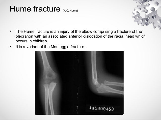 fracture generationnelle dissertation Doctoral dissertations university of connecticut graduate school 8-17-2015 the treatment of rib fractures with of rib fractures with thoracic epidural.