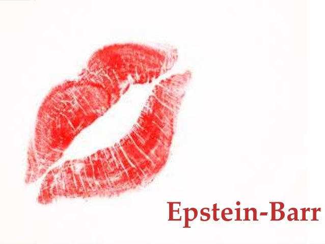epstein barr virus research papers Open access to scientific and medical research mononucleosis and epstein–barr virus infection: treatment and epstein–barr virus is a member of the.