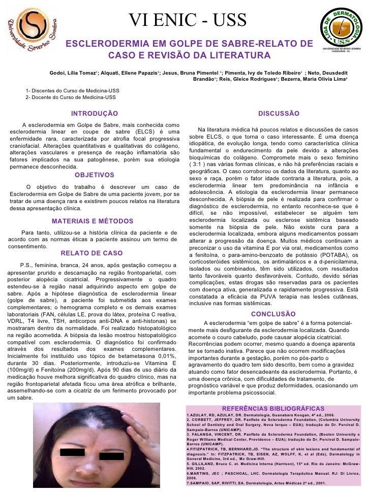 ESCLERODERMIA EM GOLPE DE SABRE-RELATO DE CASO E REVISÃO DA LITERATURA Godoi, Lília Tomaz 1 ; Alquati, Ellene Papazis 1 ; ...