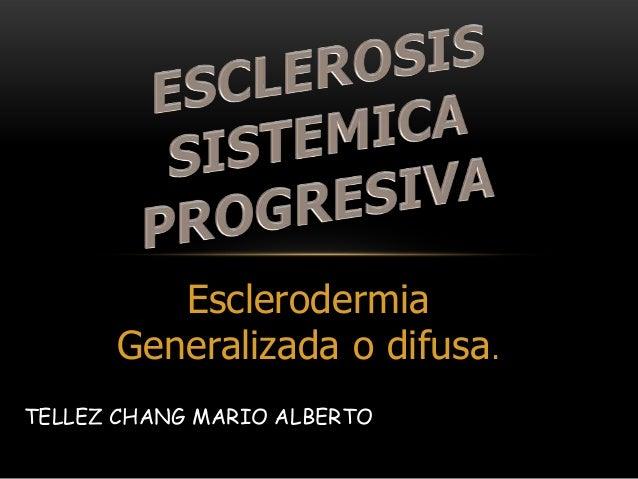 Esclerodermia      Generalizada o difusa.TELLEZ CHANG MARIO ALBERTO