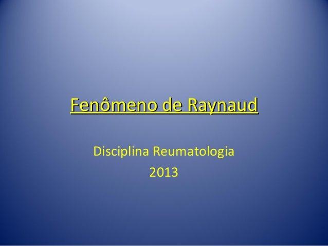 Esclerodermia f ry