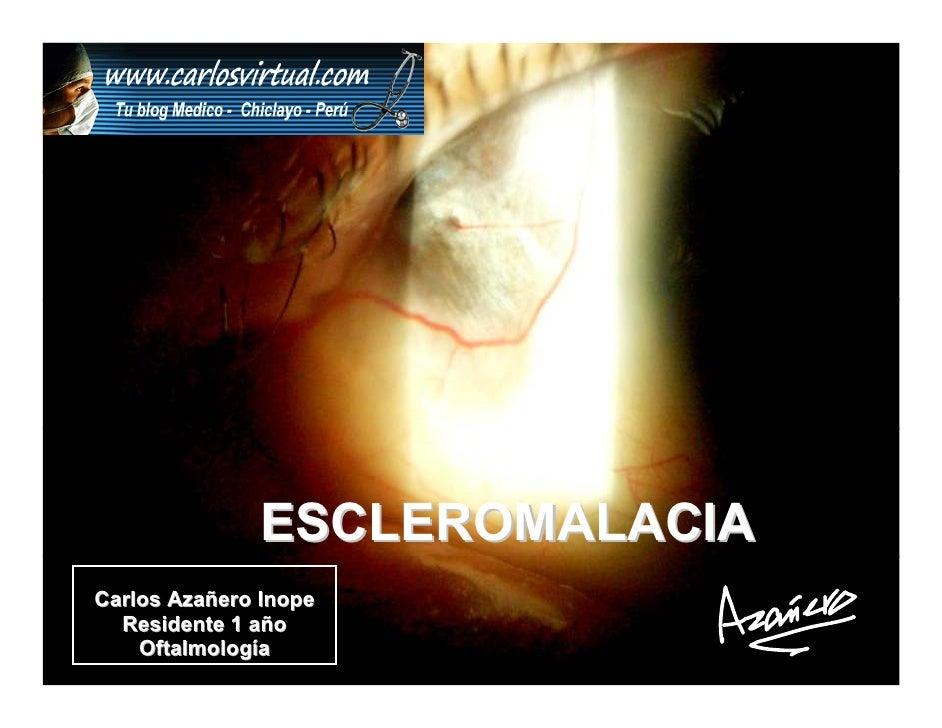 ESCLEROMALACIA Carlos Azañero Inope   Residente 1 año     Oftalmología