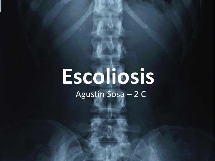 Escoliosis<br />Agustín Sosa – 2 C<br />