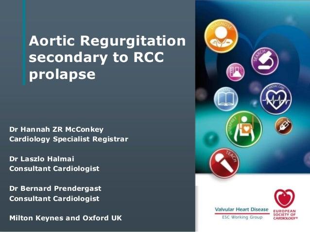 Aortic Regurgitation secondary to RCC prolapse