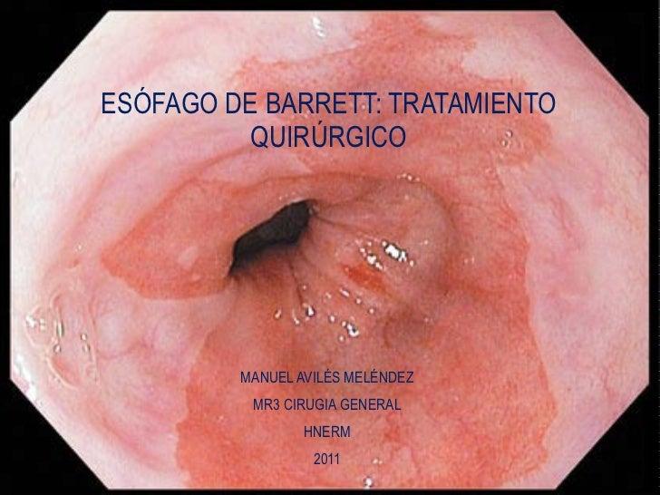 MANUEL AVILÉS MELÉNDEZ MR3 CIRUGIA GENERAL HNERM 2011 ESÓFAGO DE BARRETT: TRATAMIENTO QUIRÚRGICO