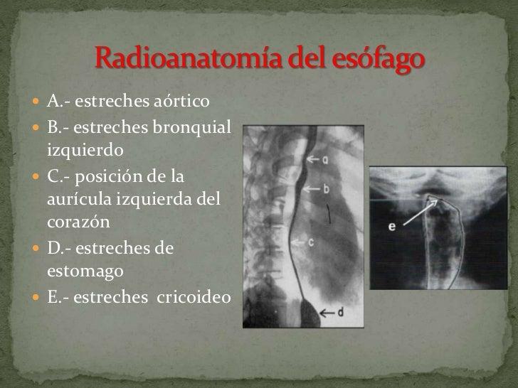 El tratamiento de la várice varicosa de las extremidades inferiores las revocaciones