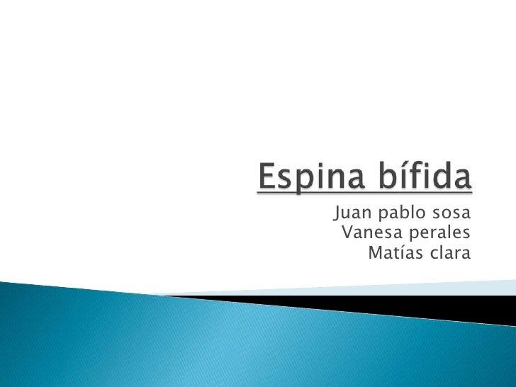 Espina bífida<br />Juan pablo sosa<br />Vanesa perales<br />Matías clara<br />