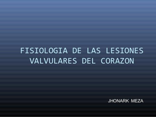 FISIOLOGIA DE LAS LESIONESVALVULARES DEL CORAZONJHONARK MEZA