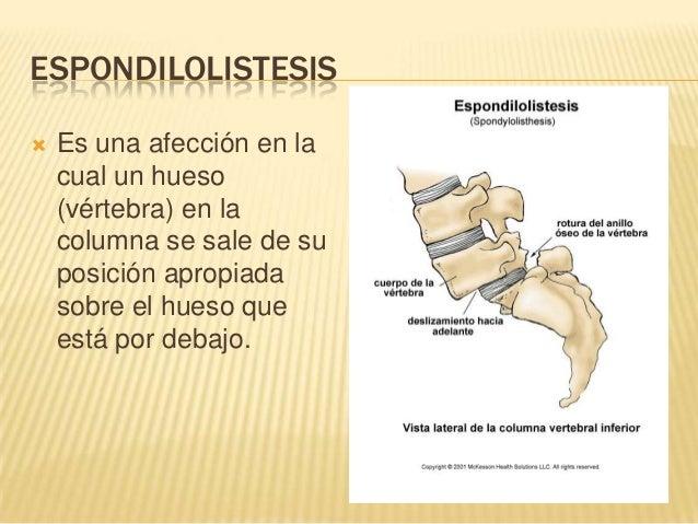 El dolor en la espalda da en urinario