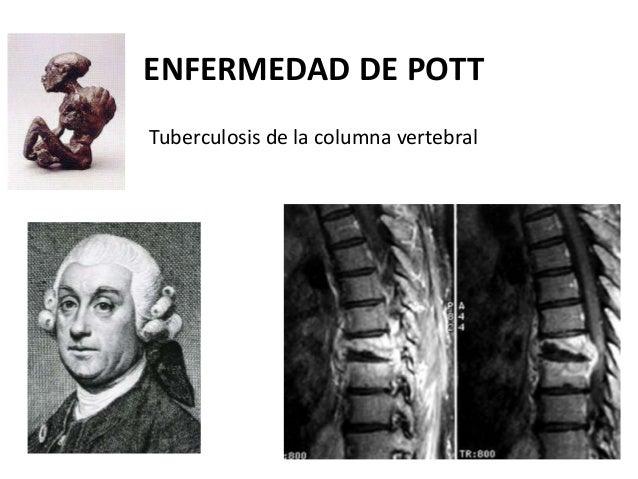 Los dolores en la parte izquierda de la espalda bajo los bordes