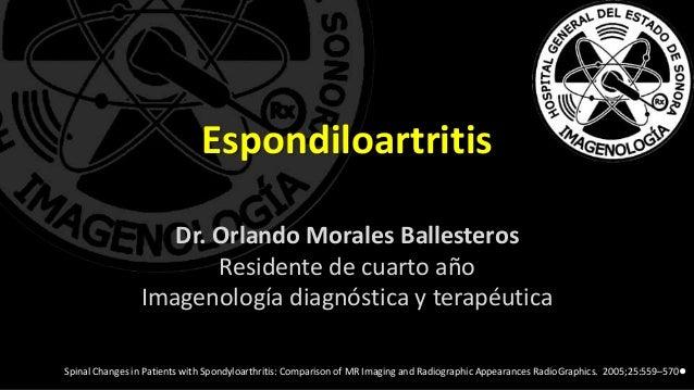 Espondiloartritis Dr. Orlando Morales Ballesteros Residente de cuarto año Imagenología diagnóstica y terapéutica Spinal Ch...
