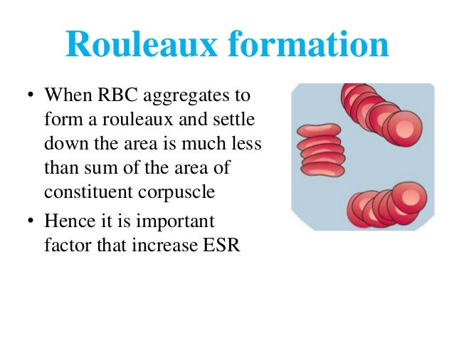erythrocyte sedimentation rate esr The erythrocyte sedimentation rate (esr) is the rate at which red blood cells  settle in a column of blood in one hour it is a nonspecific indicator of  inflammatory.
