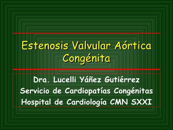 Estenosis Valvular Aórtica        Congénita   Dra. Lucelli Yáñez GutiérrezServicio de Cardiopatías CongénitasHospital de C...