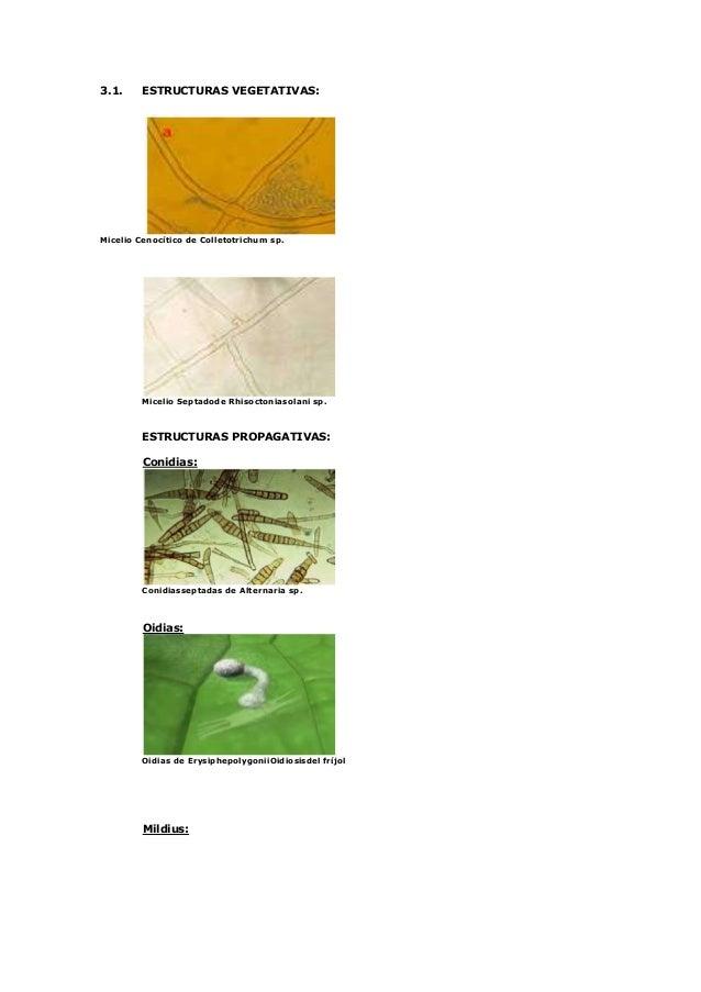 Estructura de los hongos fitopatogeno