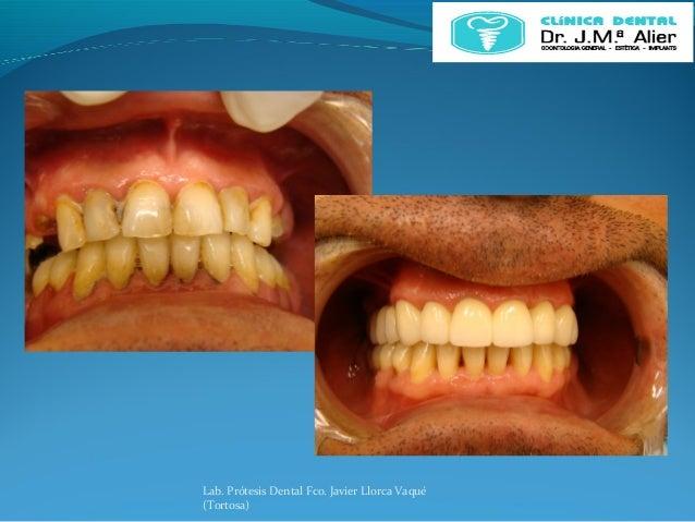 Lab. Prótesis Dental Fco. Javier Llorca Vaqué (Tortosa)