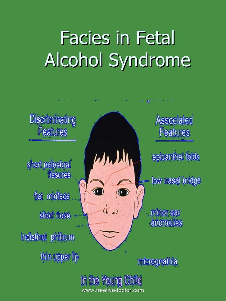 the characteristics and dangers of fetal alcohol syndrome Tags: fetal alcohol syndrome, alcohol exposure, pregnancy,  however, new  research is showing that the risk and severity of fetal alcohol syndrome varies   individuals with fasd can have a variety of signs and symptoms.
