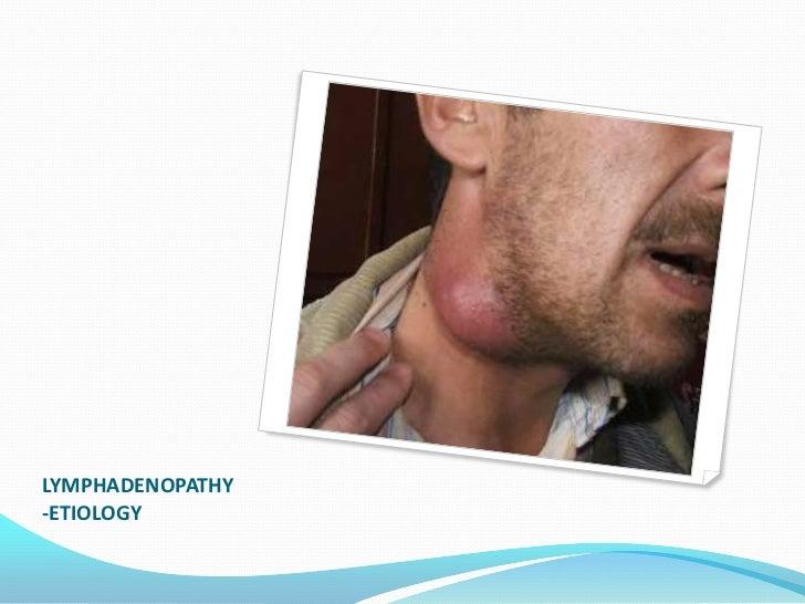 Etiology of lymphadenopathy