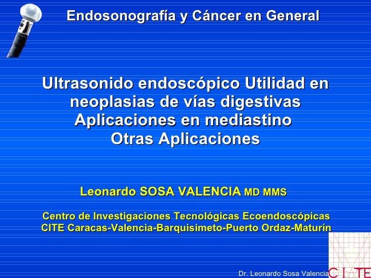 Ultrasonido endoscópico Utilidad en neoplasias de vías digestivas Aplicaciones en mediastino   Otras Aplicaciones Leonardo...