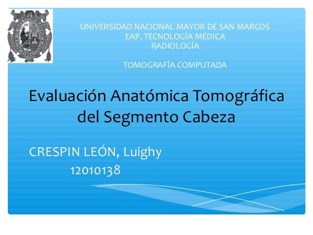 UNIVERSIDAD NACIONAL MAYOR DE SAN MARCOS  Evaluación Anatómica Tomográfica  del Segmento Cabeza  CRESPIN LEÓN, Luighy  120...