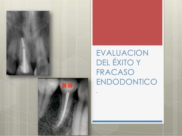Evaluacion del éxito y fracaso endodontico