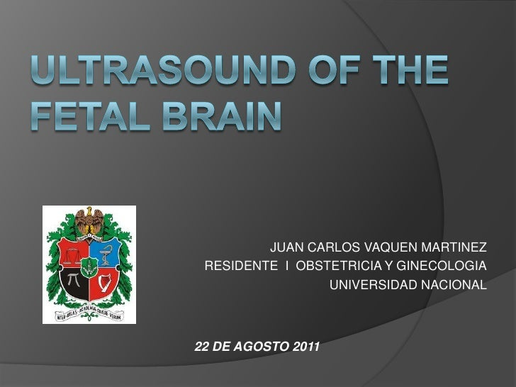 Ultrasound of the Fetal Brain<br />JUAN CARLOS VAQUEN MARTINEZ<br />RESIDENTE  I  OBSTETRICIA Y GINECOLOGIA<br />UNIVERSID...