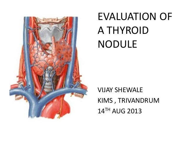 EVALUATION OF A THYROID NODULE VIJAY SHEWALE KIMS , TRIVANDRUM 14TH AUG 2013