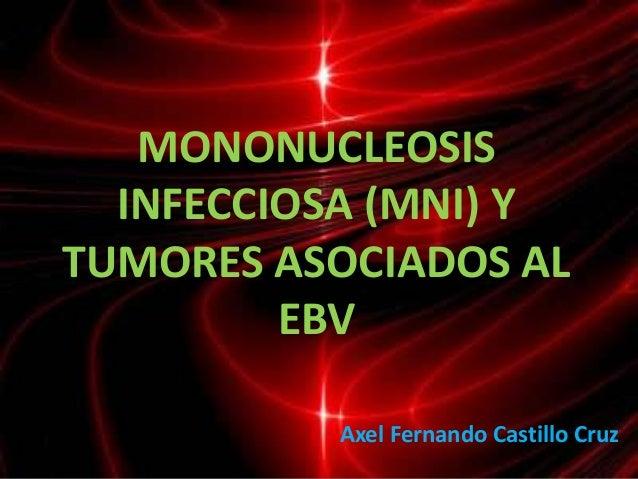 MONONUCLEOSIS  INFECCIOSA (MNI) YTUMORES ASOCIADOS AL         EBV          Axel Fernando Castillo Cruz