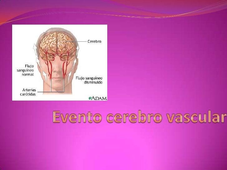 Evento cerebro vascular<br />