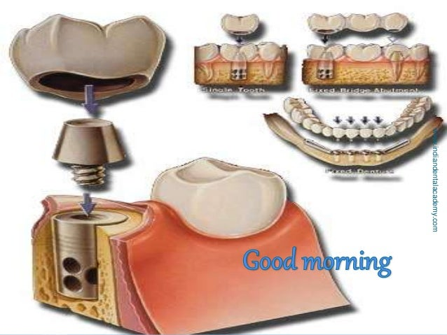 Evolution ,components and classification of implants/ orthodontic practice