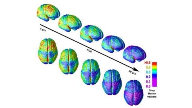 Evolution human brain