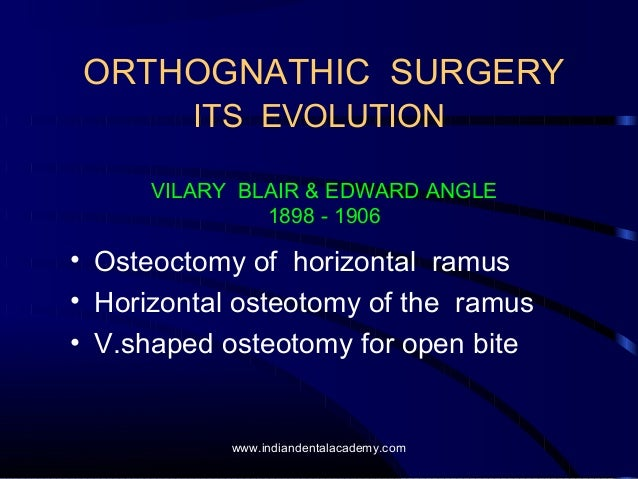 Evolution of orthognathic surgery /certified fixed orthodontic courses by Indian dental academy