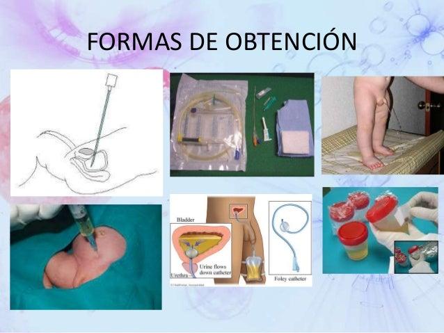 Examenes de laboratorio (BH, QS, TP, TPT, EGO)