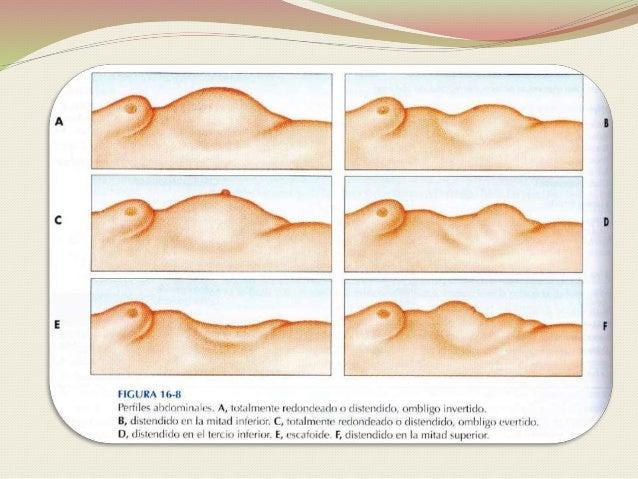 Las recomendaciones después del tratamiento de la trombosis